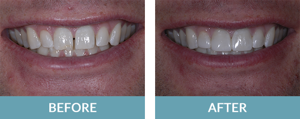 Patient with shining white teeth veneers in Comstock Park.