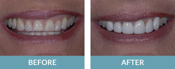 Six dental veneers placed by a Grand Rapids dentist.