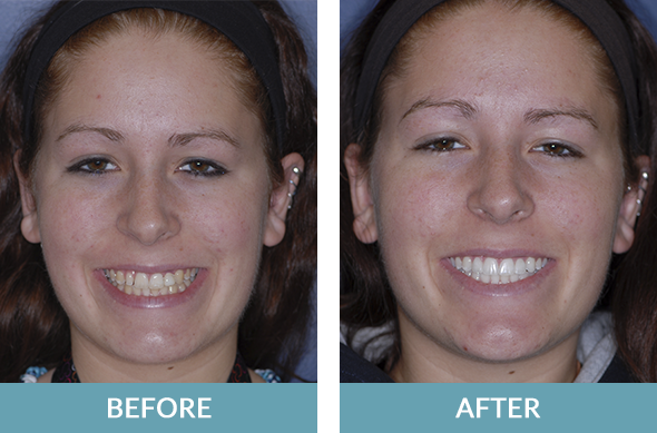 Extensive cosmetic and restorative dentistry procedures performed on a patient in Comstock Park, MI.