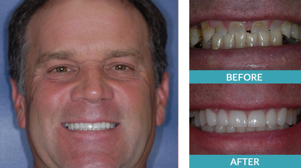 Restorative dentistry changed a man's smile in Comstock Park via six veneers and four implant crowns.