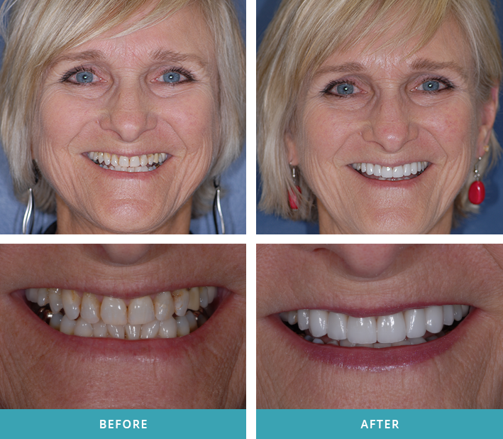 Grand Rapids patient with eight porcelain veneers applied by Comstock Park dentist Dr. Bruce Stewart.