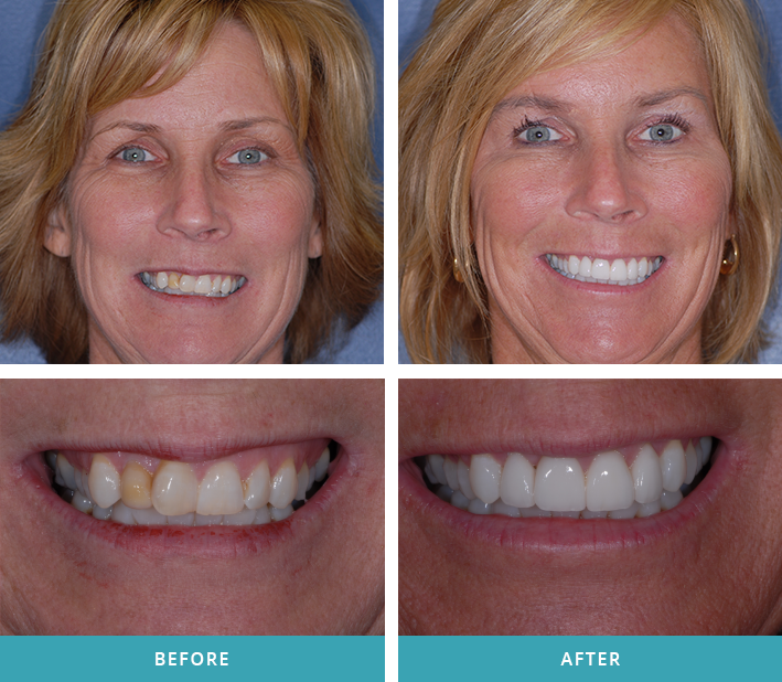 Four porcelain dental veneers on a patient from Comstock Park.
