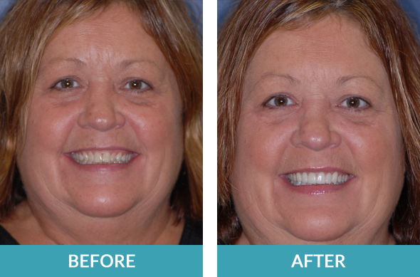 Patient had six porcelain veneers put on by cosmetic dentists Dr. Bruce Stewart and Eric Hull.