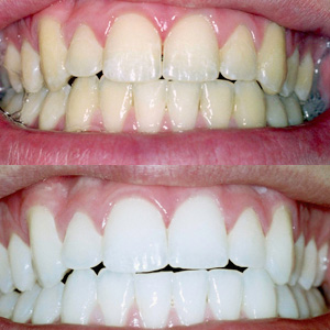 cosmetic dentistry with a Rockford dentist Grand Rapids MI