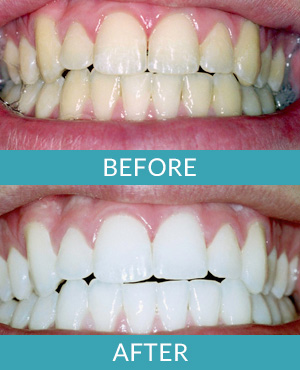 tooth bleaching with a Comstock Park dentist Rockford MI