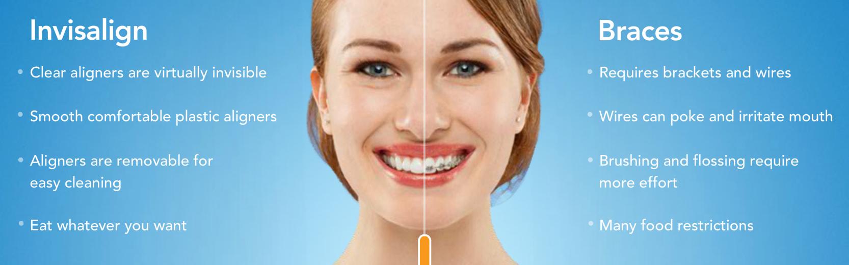 Invisalign clear braces Grand Rapids - Straighten teeth ...