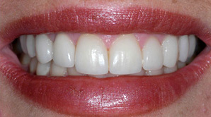 teeth veneers and dental veneer services with a Comstock Park dentist Grand Rapids MI
