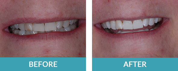 Kor-Whitening-before-after