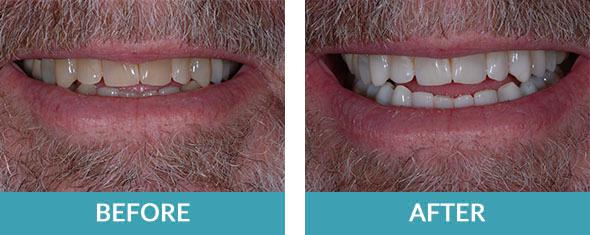 teeth bleaching for white teeth in Rockford MI and Grand Rapids
