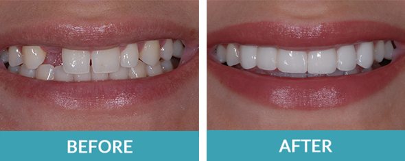 Three unit dental bridge to replace a missing tooth as well as three porcelain veneers.
