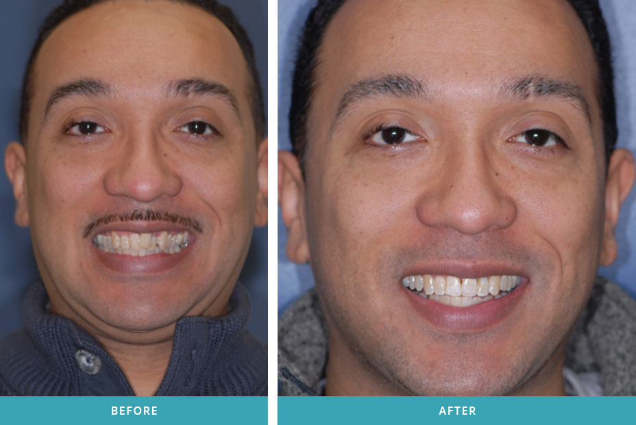 invisalign before and after photos dentist in comstock park mi