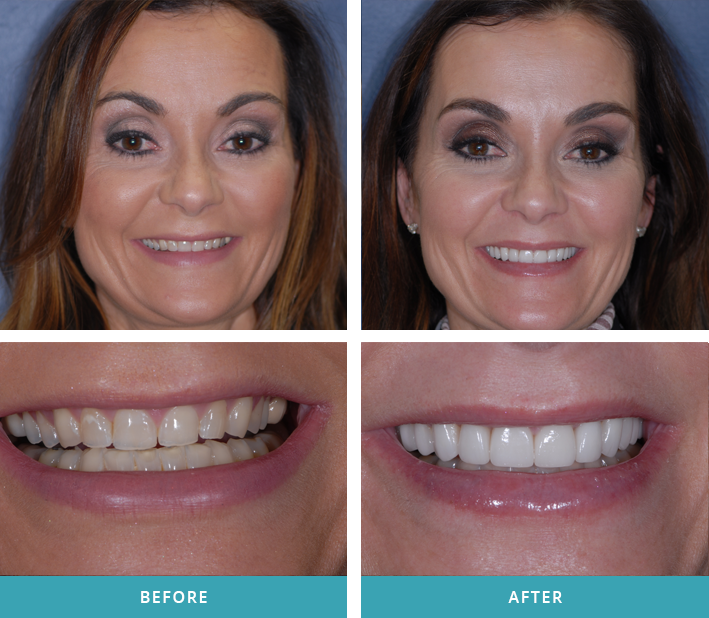 Patient with twelve new porcelain crowns and veneers from the Comstock Park dentists at Stewart & Hull Aesthetic & General Dentistry.