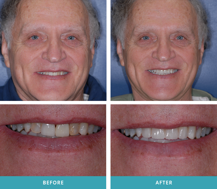 Patient with two porcelain veneers and crowns that he received from a dentist near Grand Rapids, MI.