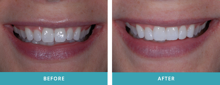 Additive cosmetic bonding to reshape and contour front four teeth.