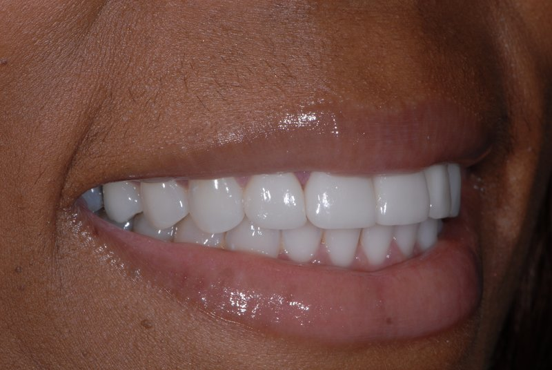 Patient has increased confidence thanks to the cosmetic dentists at Stewart & Hull Aesthetic & General Dentistry.