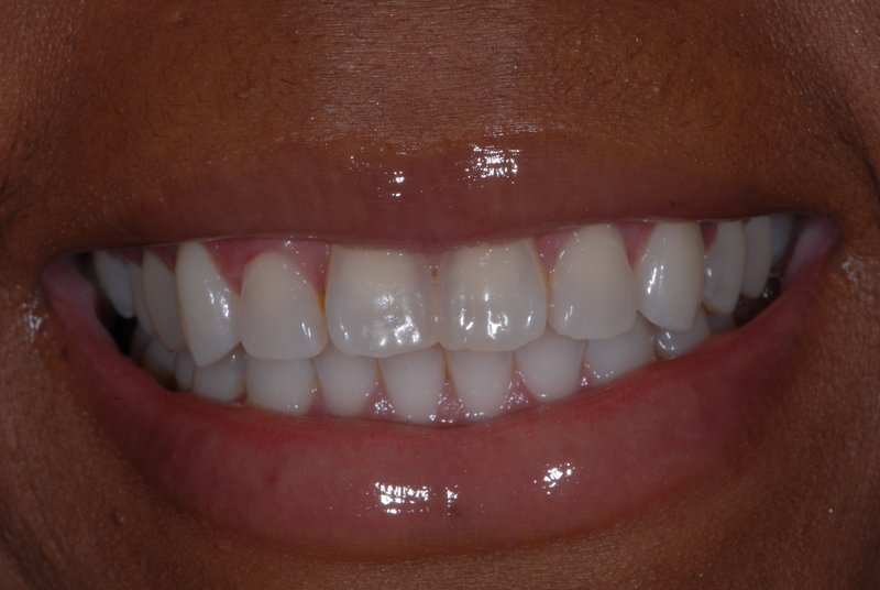 Patient has imperfect teeth without porcelain veneers.