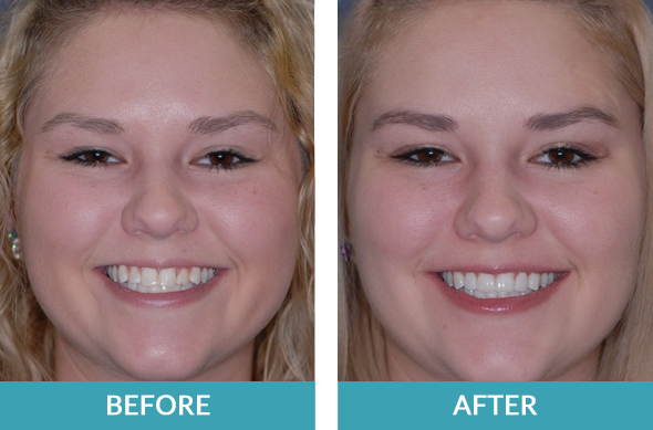 Porcelain teeth veneers case on a patient from Grand Rapids, MI.