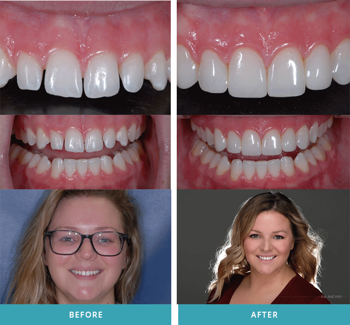 Cosmetic teeth bonding case from a dentist in Comstock Park, MI.