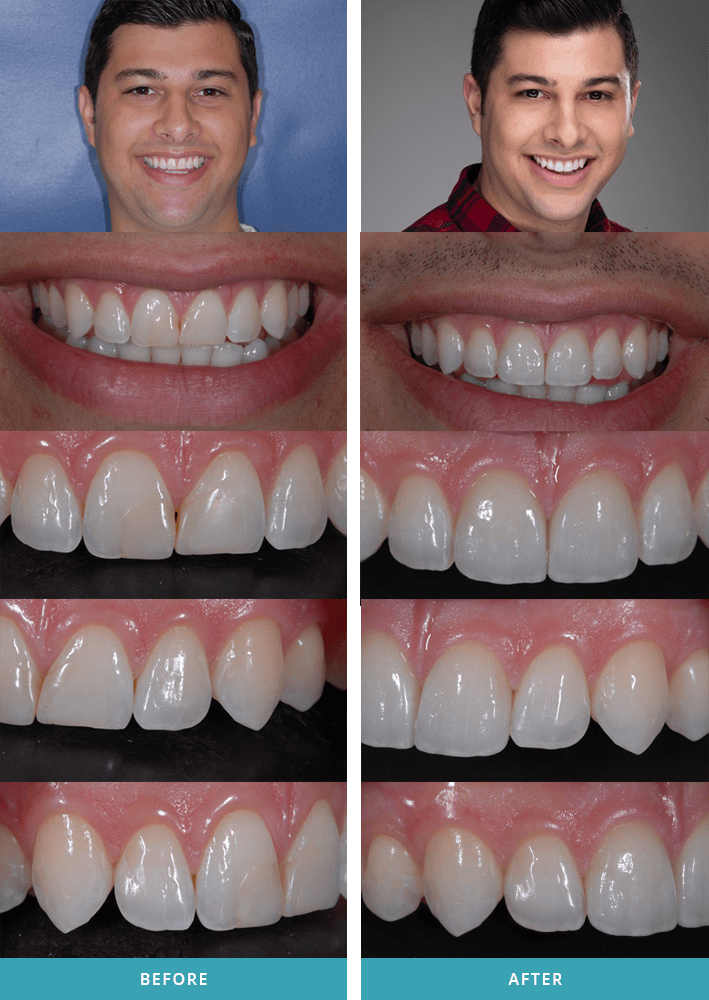 "Porcelain dental veneers case with a patient from Grand Rapids, MI."" width=709 height=1000 class="