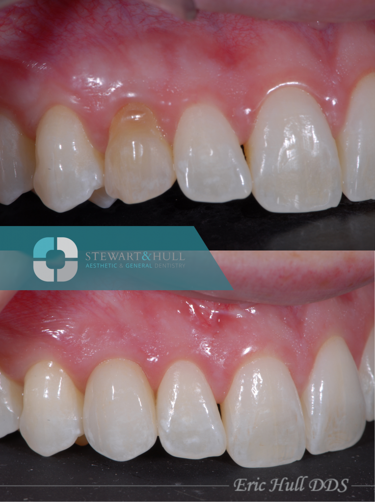 before and after photos of a tooth implant and crown by Dr. Eric Hull in Comstock Park MI