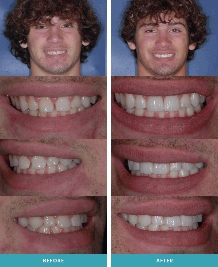 Patient showing off one dental veneer and one tooth crown in Comstock Park.