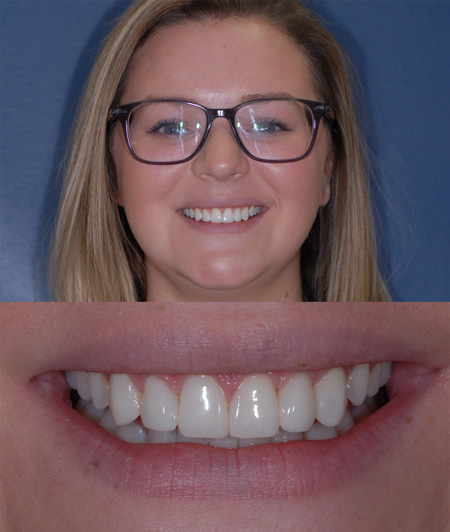 After cosmetic dental bonding by Dr. Eric Hull, a cosmetic dentist near Grand Rapids, MI