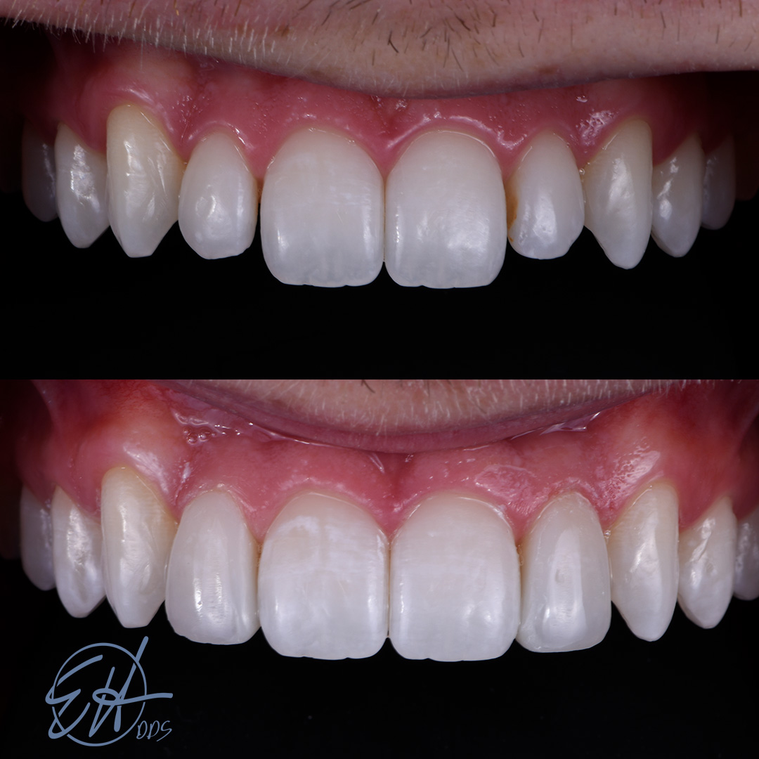 Patient received cosmetic bonding from Dr. Hull, a Comstock Park dentist.