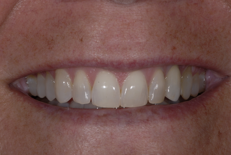 Patient has increased confidence thanks to the cosmetic dentists at Eric Hull DDS Aesthetic & General Dentistry.