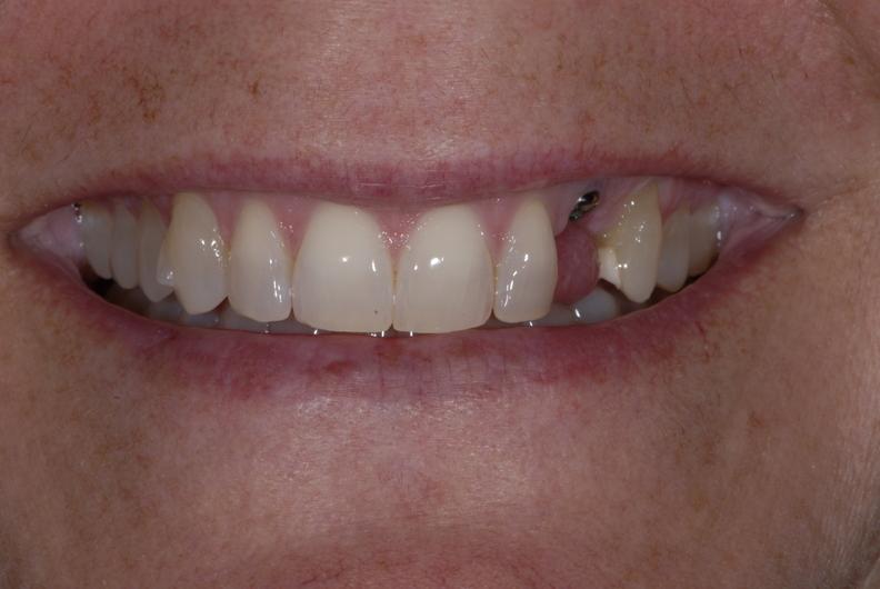 Patient near Rockford MI in need of dental veneers.