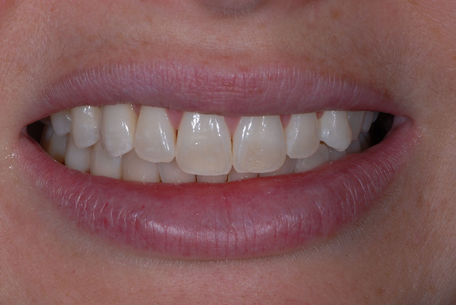 Photo of patient after she received teeth implants