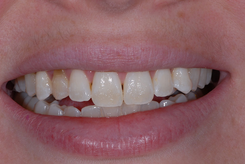 Photo of patient before she received teeth implants